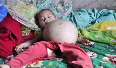 Bocah umur 1 Tahun Hamil , Aneh Tapi Nyata. namanya Kang mengru, bocah berumur satu tahun dari china ini tengah Mengandung. Paramedis pun masih bingung apa penyebabnya. Dan kini mereka telah mempersiapkan oprasi untuk mengeluarkan janin Tsb.