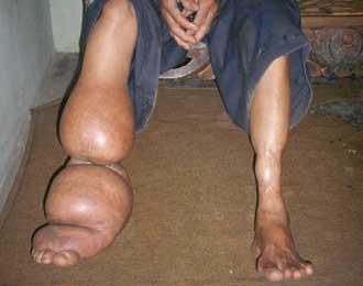 Penyakit Kaki Gajah atau Filariasis adalah penyakit menular yang disebabkan oleh cacing Filaria yang ditularkan melalui berbagai jenis nyamuk. Penyakit ini bersifat menahun (kronis) dan bila tidak mendapatkan pengobatan, dapat menimbulkan ccd.