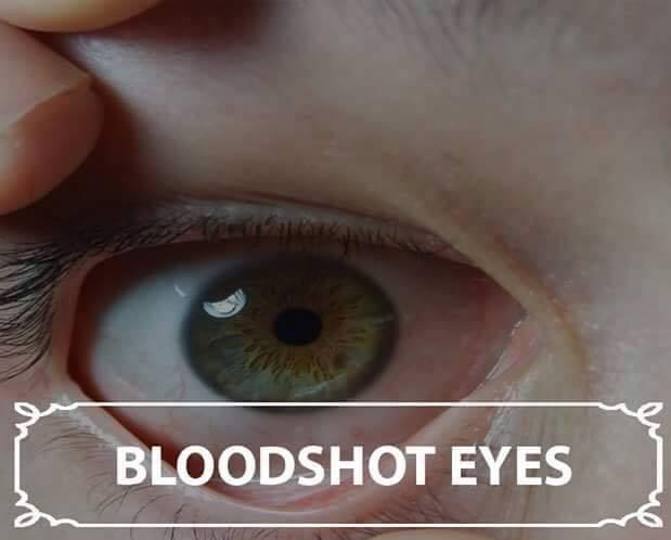 Mata kering Kekurangan cairan tubuh juga berdampak pada kesehatan mata. Ketika tubuhmu mengalami dehidrasi, mata akan kering dan menjadi kemerah-merahan karena iritasi. Terlebih lagi jika kamu memakai lensa kontak, minum air putih sangatlah penting Pulsker.
